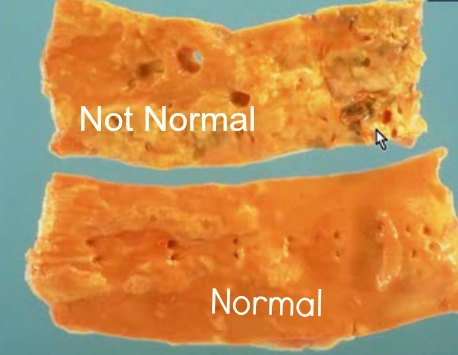 Aortic atherosclerosis