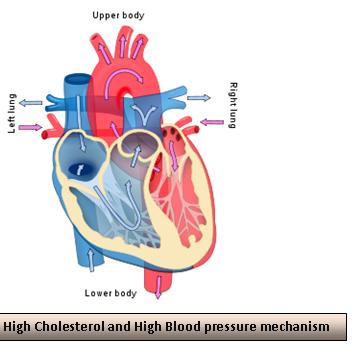 cholesterol and  high blood preasure